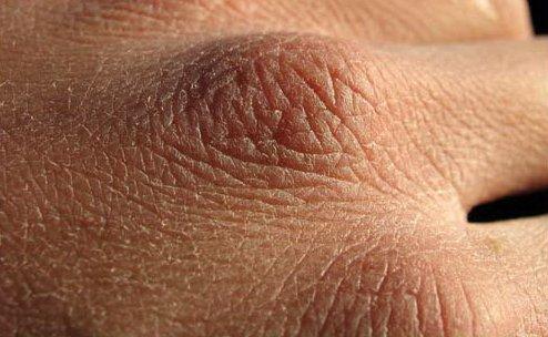 Skin-irritation
